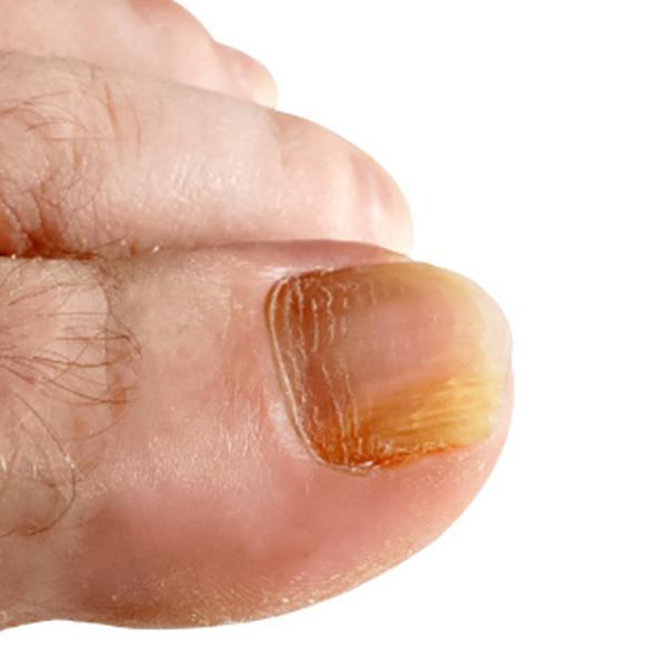 Fußnagelpflege